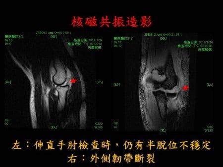 elbow-fx-dislocation (3)