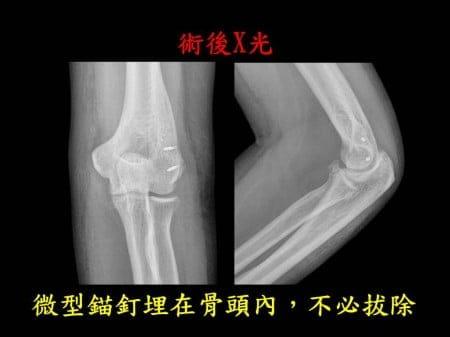 elbow-fx-dislocation (6)