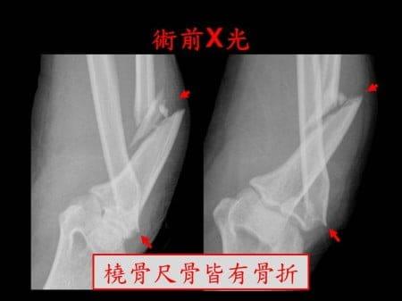 elbow-fx2- (1)