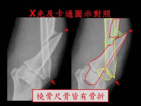 elbow-fx2- (2)