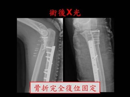 elbow-fx2- (3)