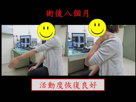 elbow-fx2- (5)