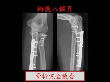 elbow-fx2- (6)