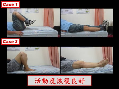 septic-knee (3)