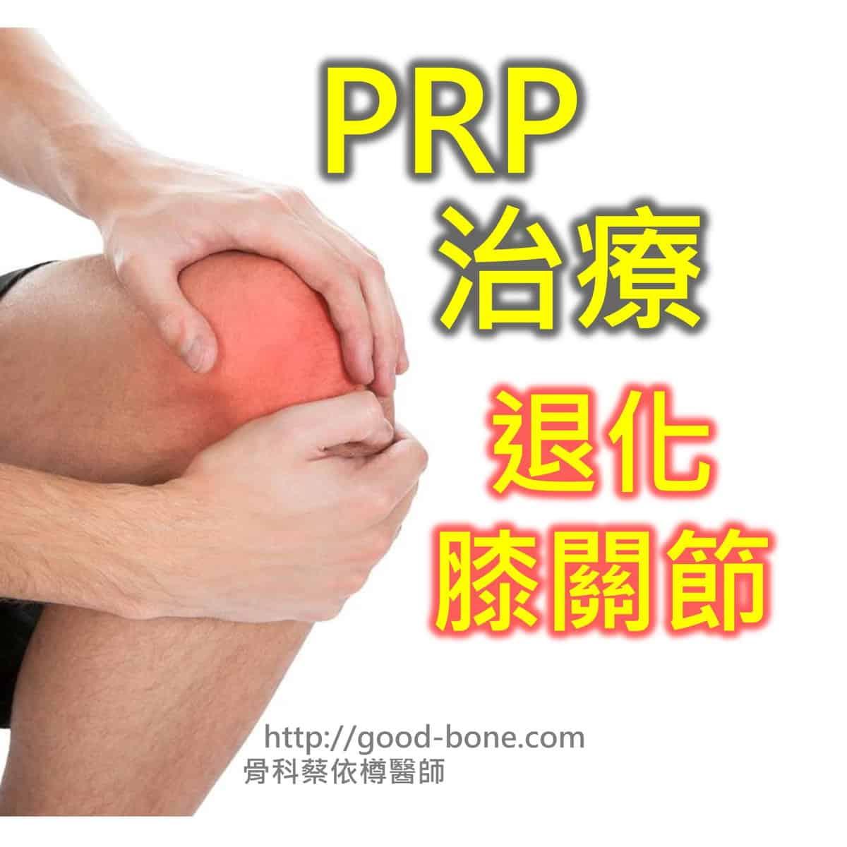PRP 治療 退化膝關節 MB 骨科蔡依樽醫師 https://good-bone.com/
