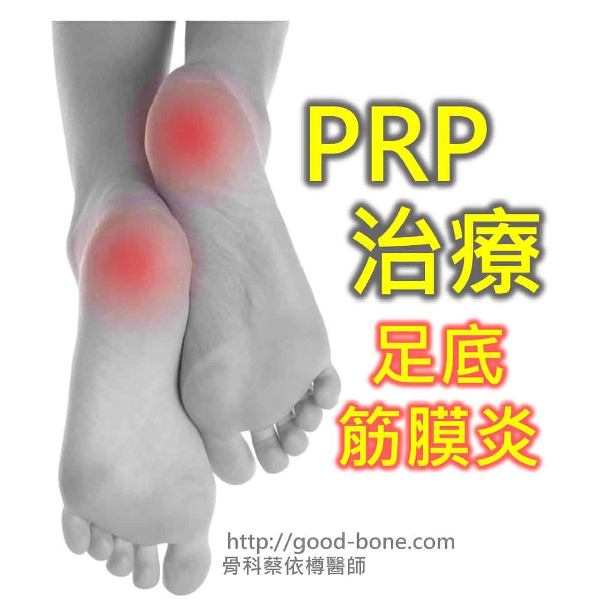PRP 治療 足底筋膜炎 MB 骨科蔡依樽醫師 https://good-bone.com/