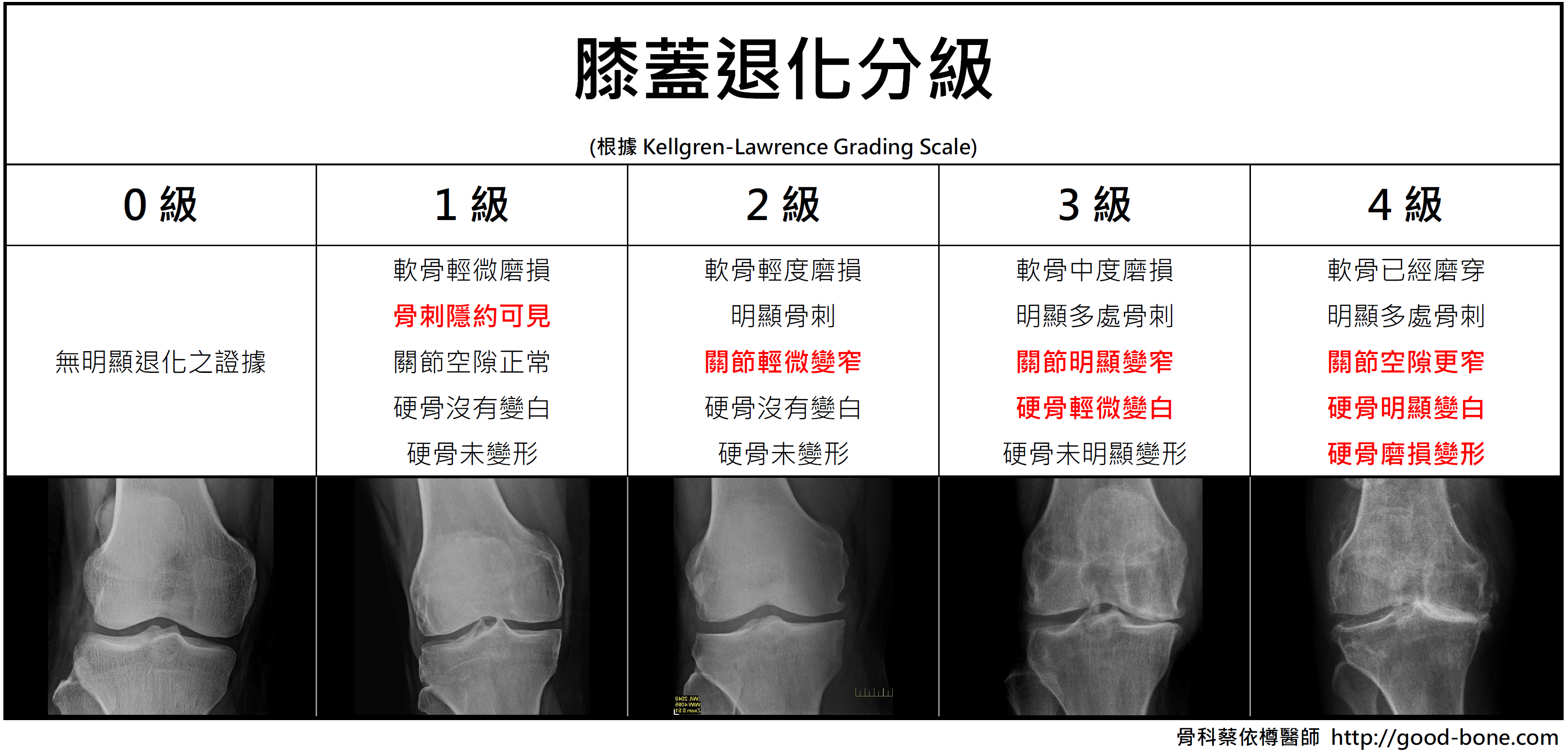 膝關節分級 Kellgren-Lawrence ; FB 骨科蔡依樽醫師 https://good-bone.com/