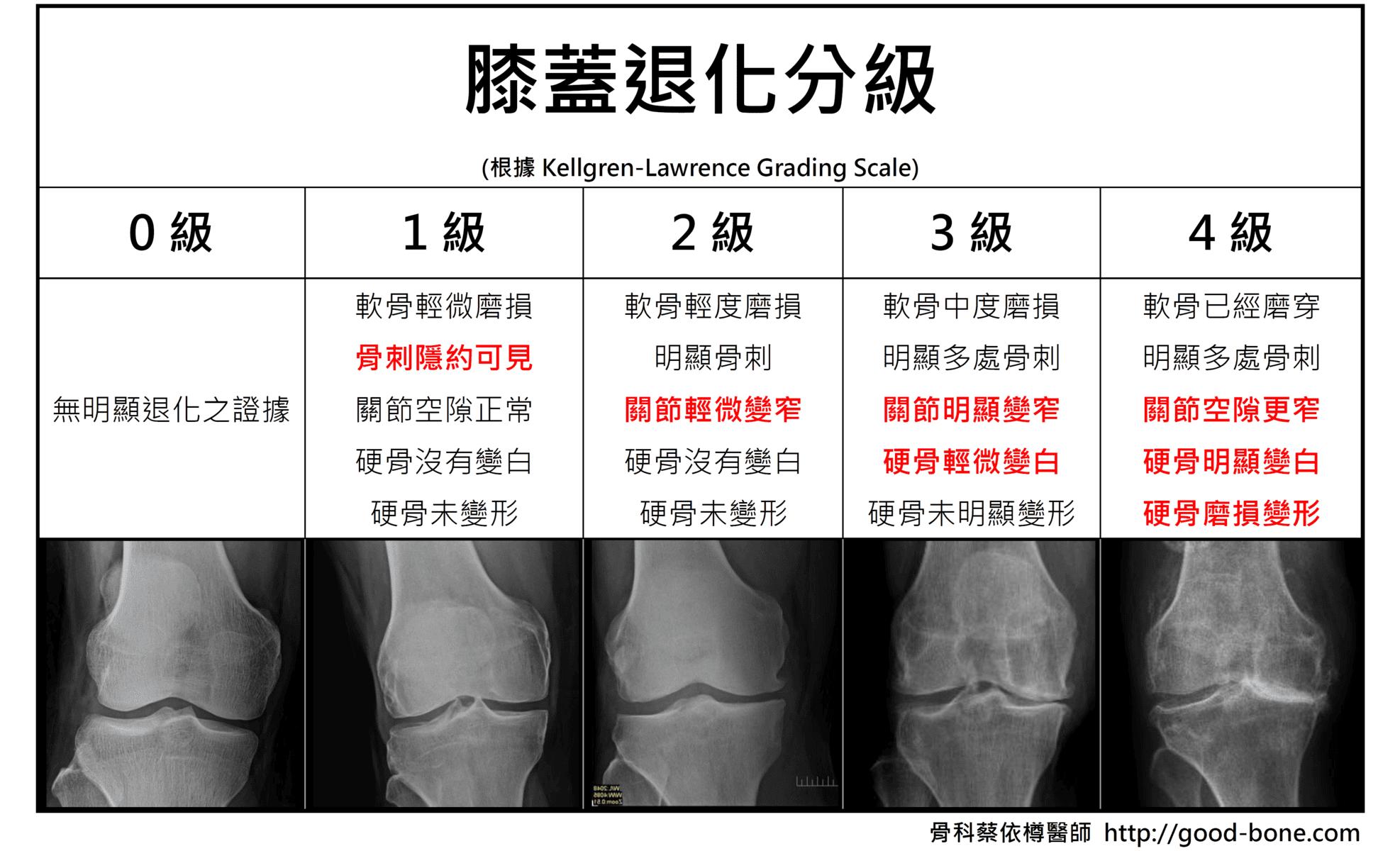 膝關節分級 Kellgren-Lawrence ; 骨科蔡依樽醫師 https://good-bone.com/