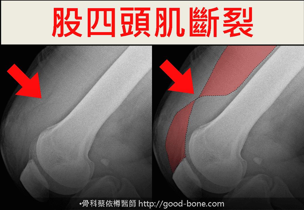 PRP+增生注射治療膝蓋疼痛|台中骨科蔡依樽醫師https://good-bone.com