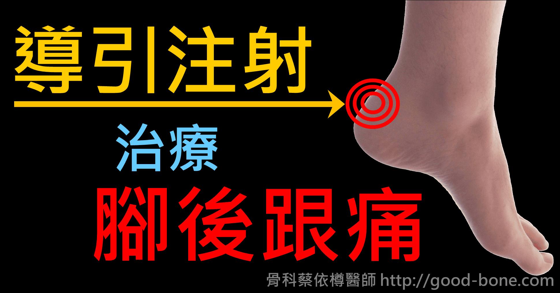 超音波導引注射治療腳後跟痛|台中骨科蔡依樽醫師https://good-bone.com
