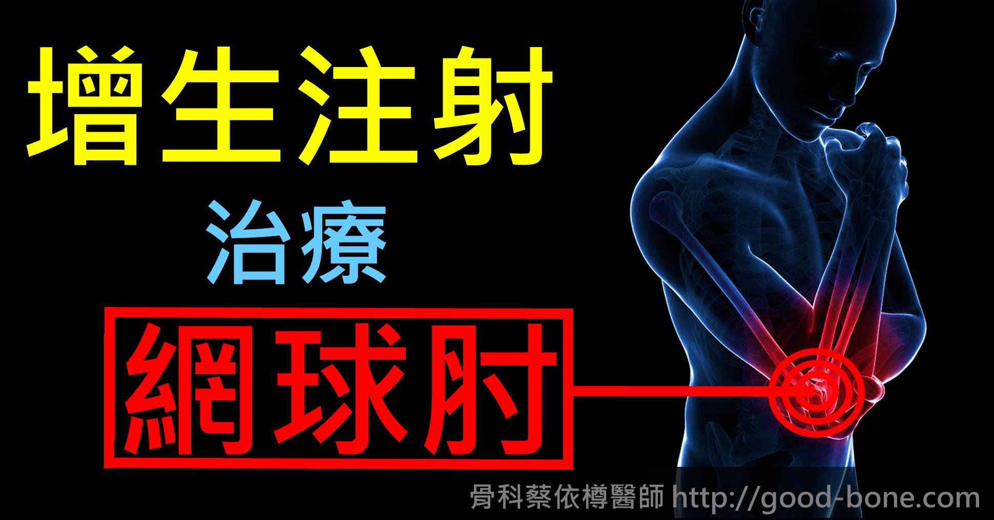 增生注射治療網球肘 台中骨科蔡依樽醫師https://good-bone.com