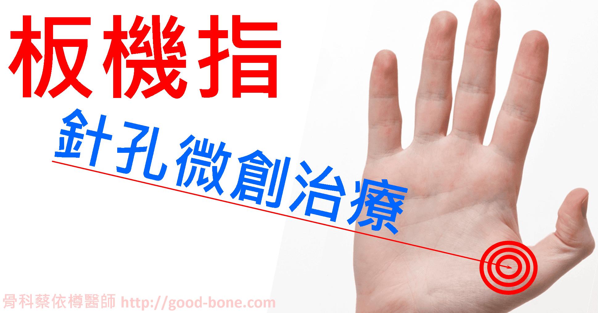 板機指-針孔微創治療|台中骨科蔡依樽醫師https://good-bone.com