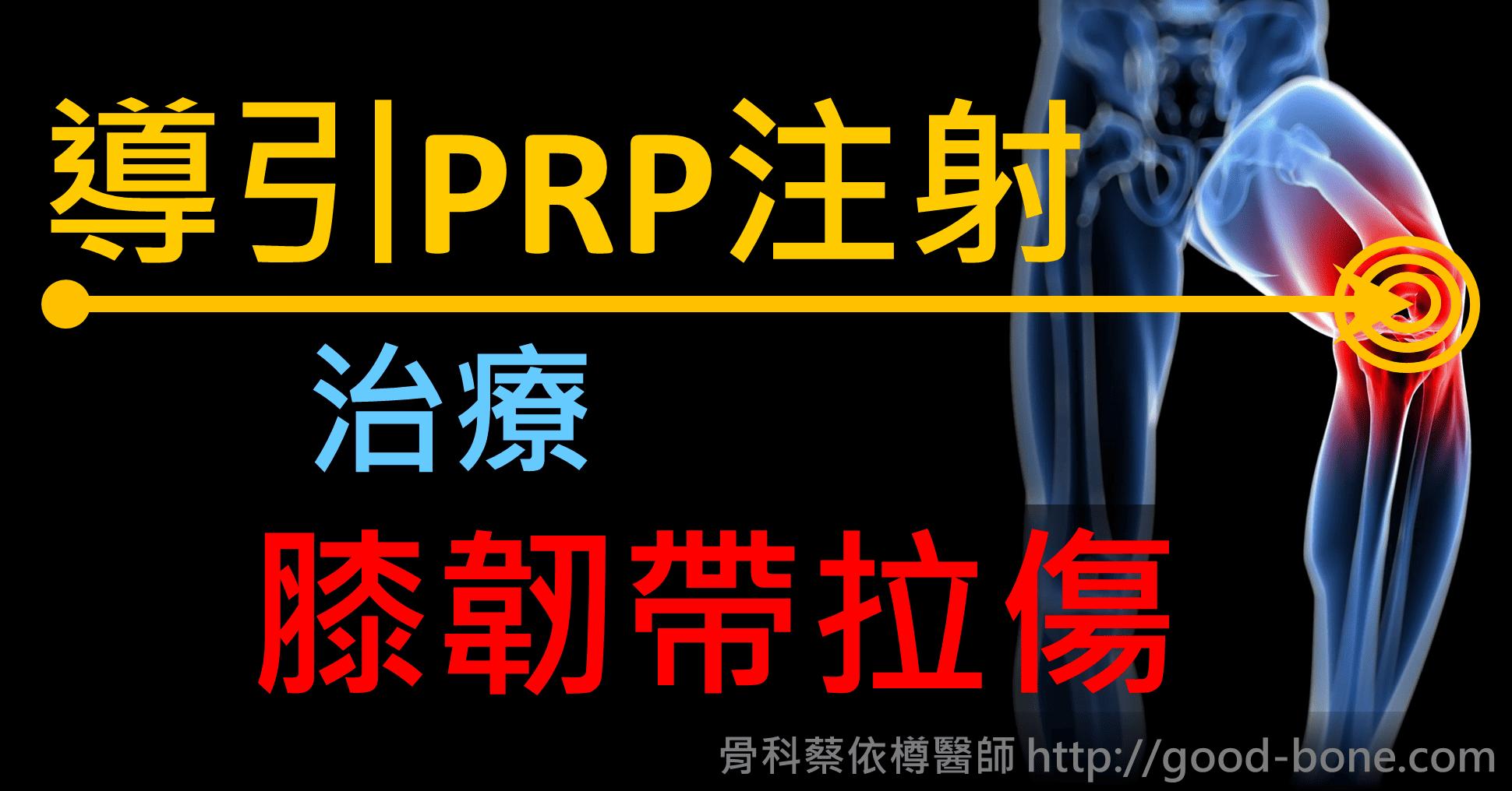 導引PRP注射治療膝韌帶拉傷|專業骨科推薦|台中骨科蔡依樽醫師https://good-bone.com