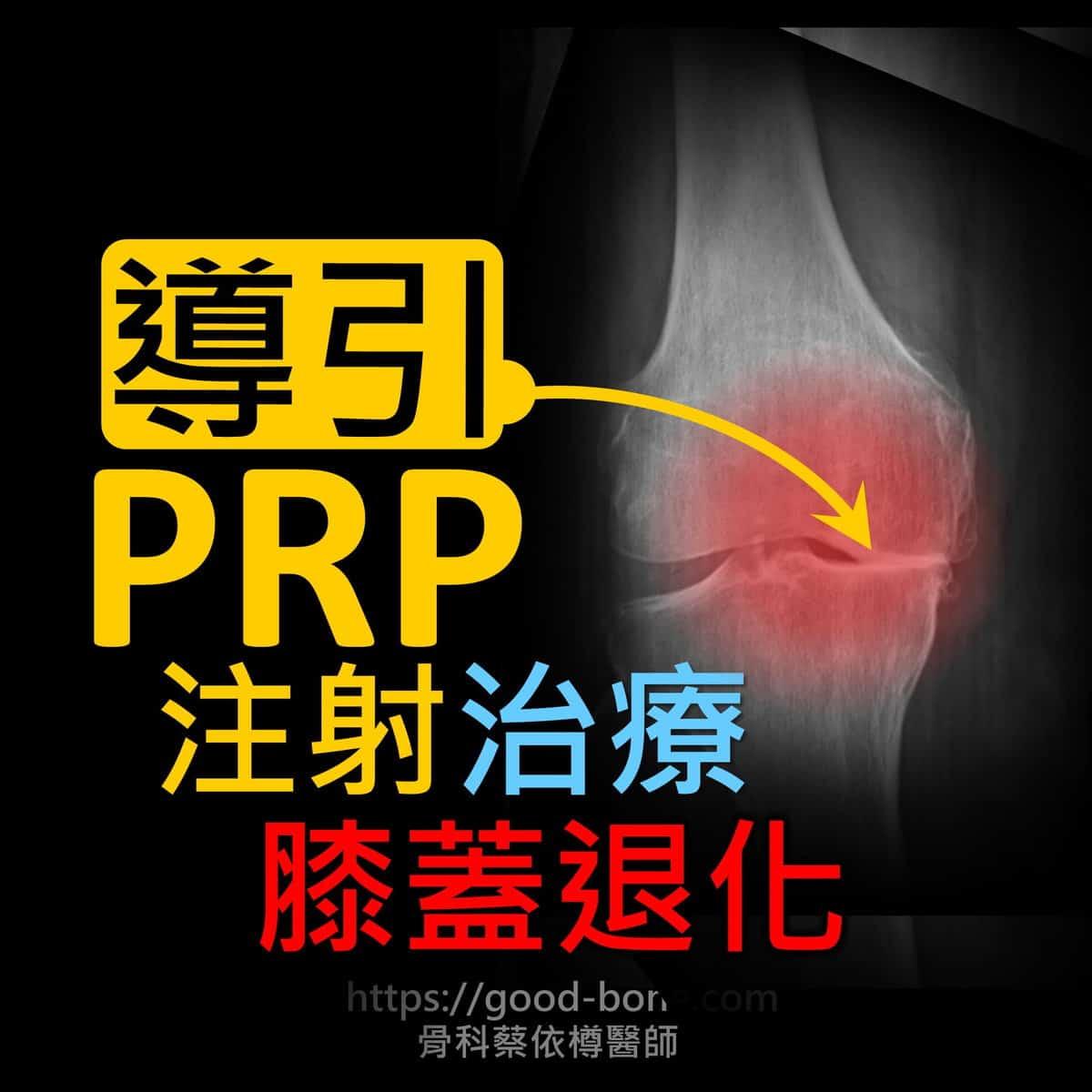 超音波導引PRP 注射治療雙膝蓋退化疼痛關節炎 疼痛注射專家、超音波導引PRP增生治療、專業骨科推薦 台中骨科蔡依樽醫師https://good-bone.com