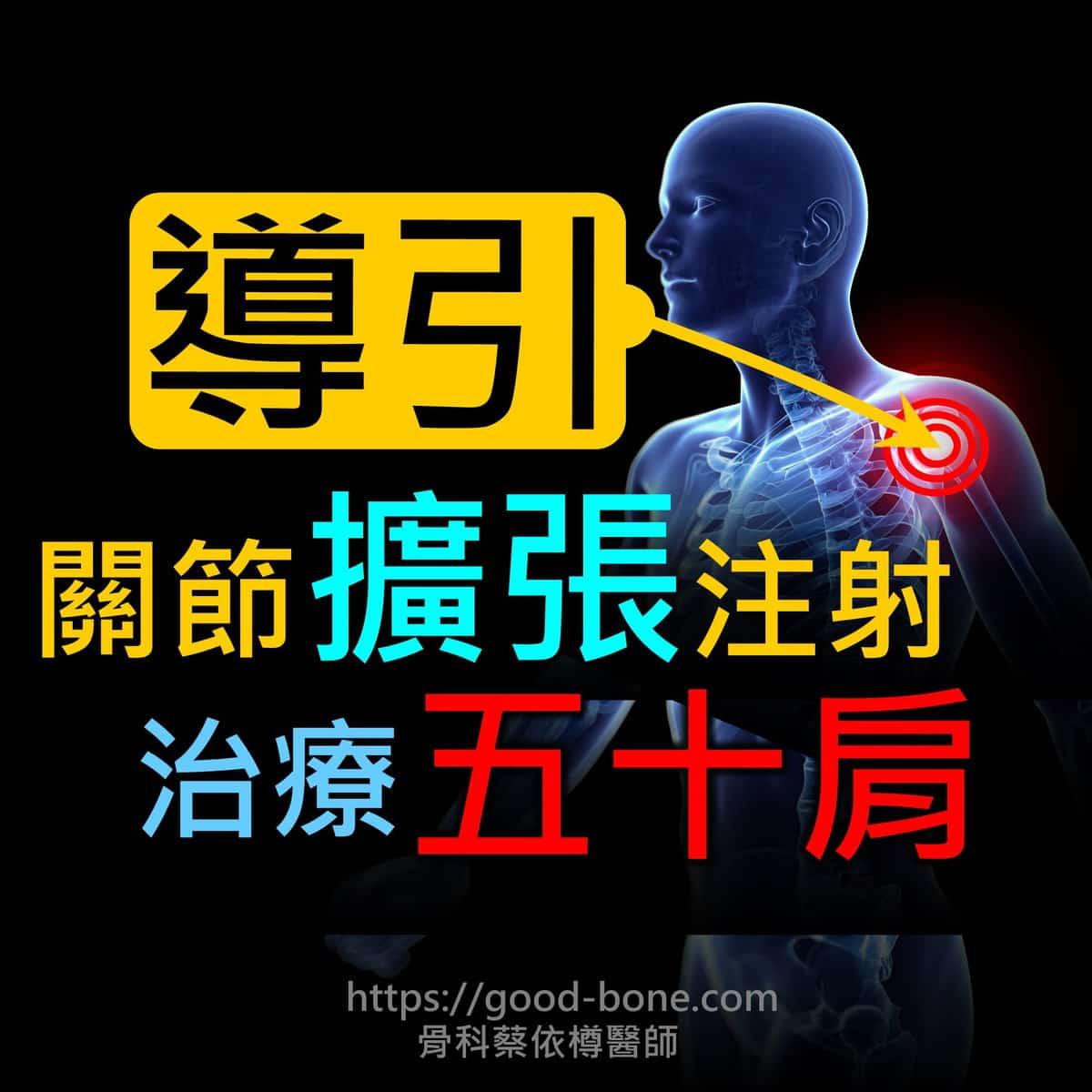 超音波導引關節擴張注射治療五十肩肩膀疼痛沾黏|專業骨科推薦|台中骨科蔡依樽醫師https://good-bone.com