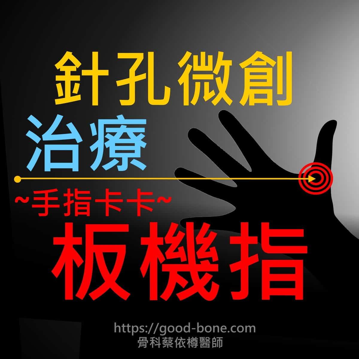 針孔微創治療手指卡卡板機指|疼痛注射專家、超音波導引PRP增生治療、專業骨科推薦|台中骨科蔡依樽醫師https://good-bone.com