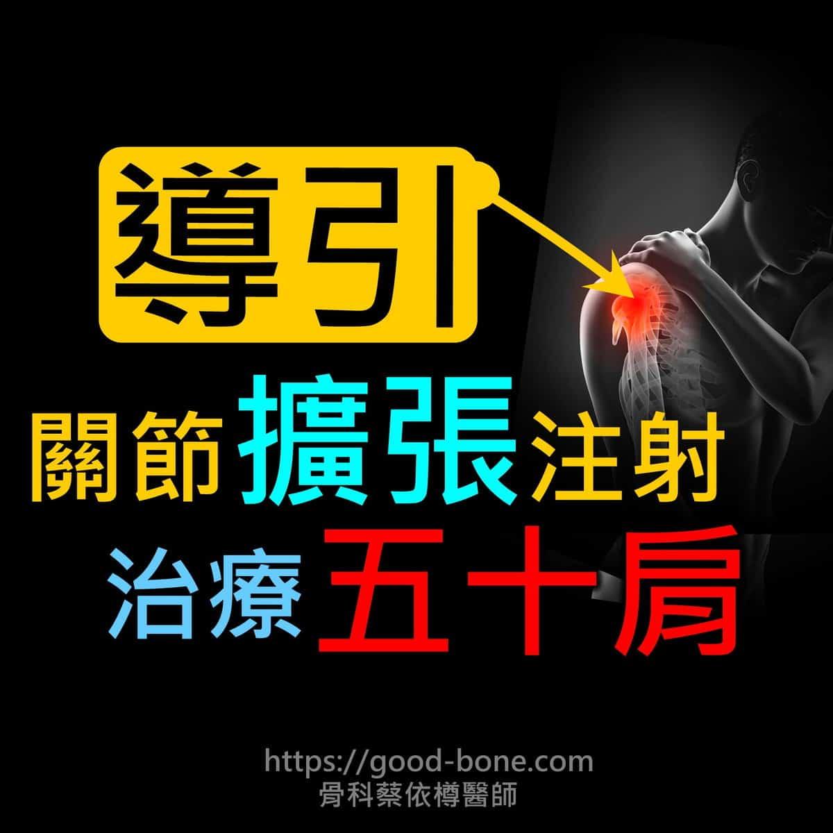|超音波導引五十肩關節擴張注射治療。五十肩肩膀疼痛沾黏。PRP自體血小板。葡萄糖、增生注射療法|專業骨科推薦|台中骨科蔡依樽醫師https://good-bone.com