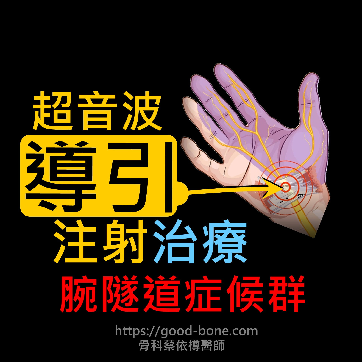 carpal tunnel syndrome, 腕隧道症候群,正中神經壓迫,超音波導引正中神經解套注射,治療前後比較,費倫測試、tinel sign, phalen test, median nerve compression neuropathy, 疼痛注射專家、超音波導引PRP增生治療、五十肩關節擴張注射治療、扳機指微創治療手術、網球肘、高爾夫球肘、媽媽手、膝蓋退化、專業骨科推薦|台中骨科蔡依樽醫師https://good-bone.com